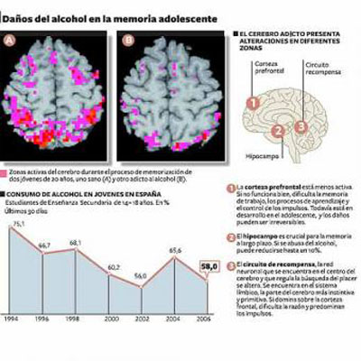 Los daños que el alcohol produce en el cerebro. Publicado en El País,